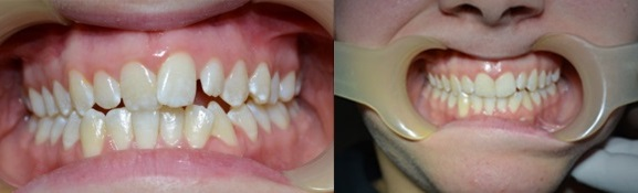 before-after-result-5