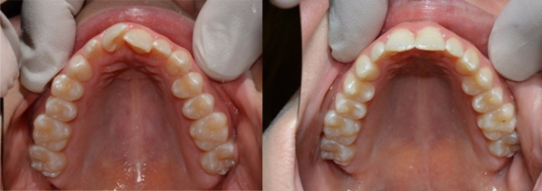 before-after-result-6