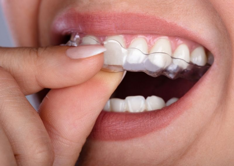 Types of Invisible Braces - Which Is the Best For You