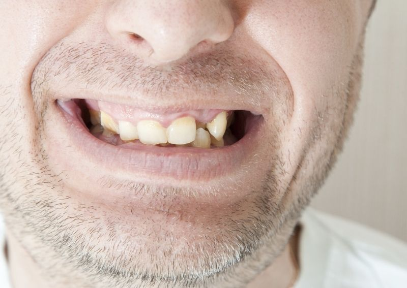 5 Signs You're Suffering From Severe Gum Disease